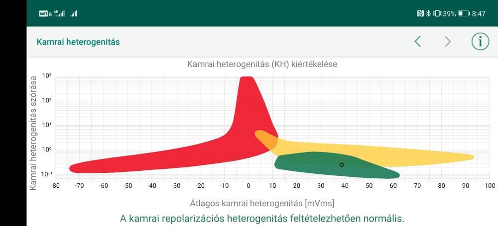 A WIWE mobil alkalmazásában megjelenő EKG mérési eredmény